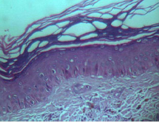 Fig3. Macular amyloidosis: eosinophilic, hyalineamyloid deposits with pigmentary incontinencein papillary dermis. (H&E, 40X)