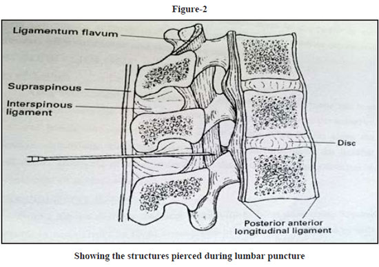 Showing the structures pierced during lumbar puncture